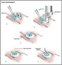 Эксимер-лазерная коррекция зрения цена